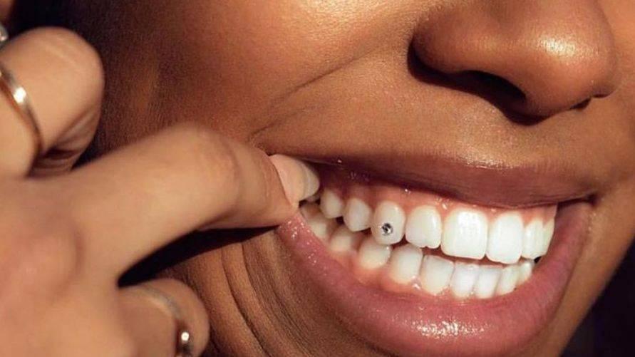 diamond uses- tooth gem